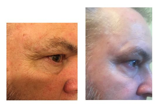 90 day results