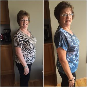 Pictures Jackie TruHealth BEFORE and AFTER 60 days Side View